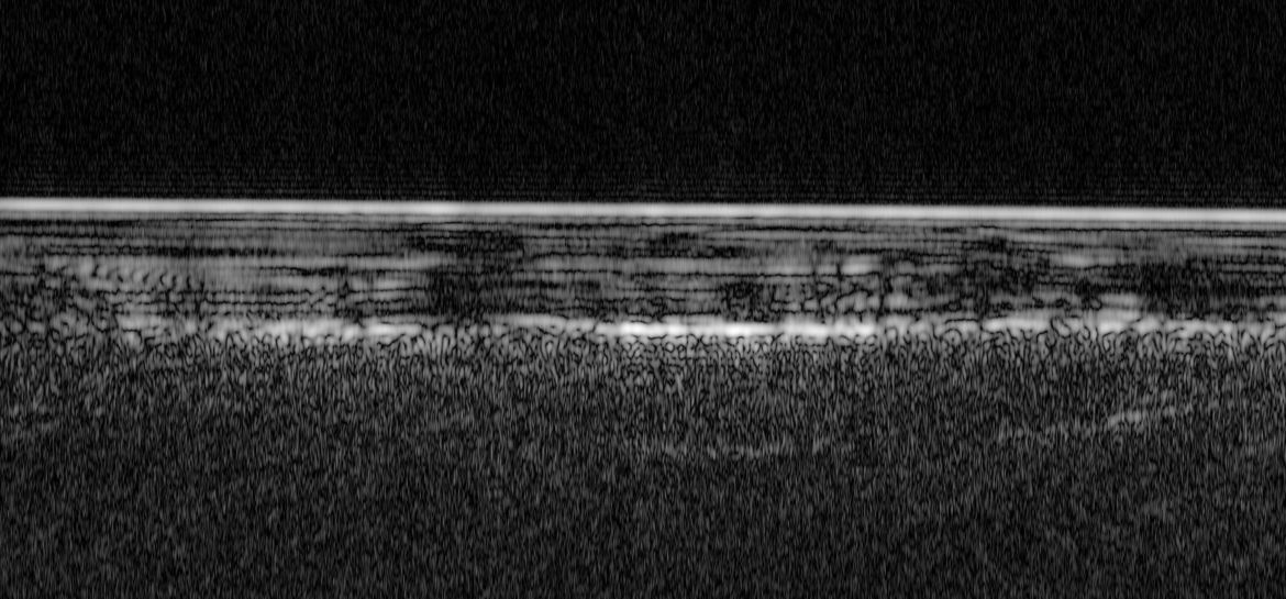 Penetrating radar image of Mars shows the icy surface as a bright fuzzy line at the top, and deeper down (toward the bottom) the patchier, undulating bright line that may be a signal from liquid water. Credit: ESA/NASA/JPL/ASI/Univ. Rome; R. Orosei et al
