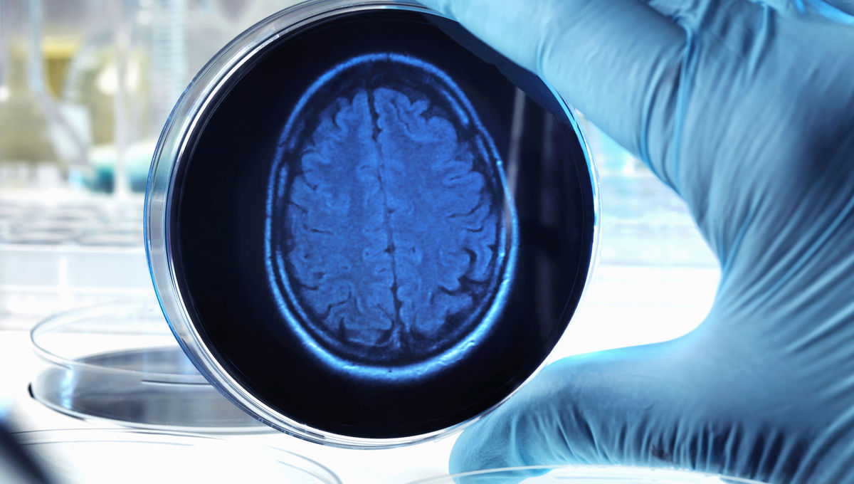 brain in petri dish