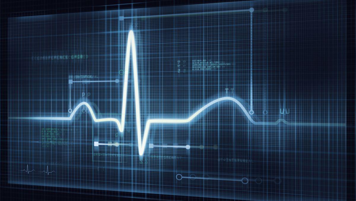 ECG Trace