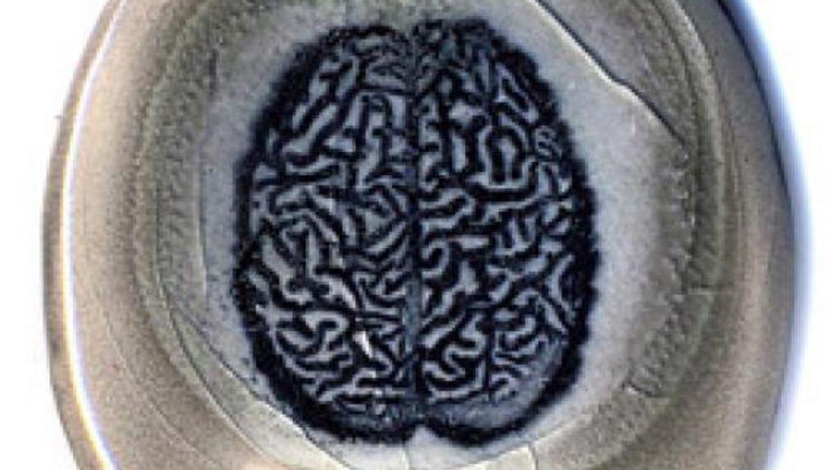 surly_brain.jpg.CROP.rectangle-large.jpg